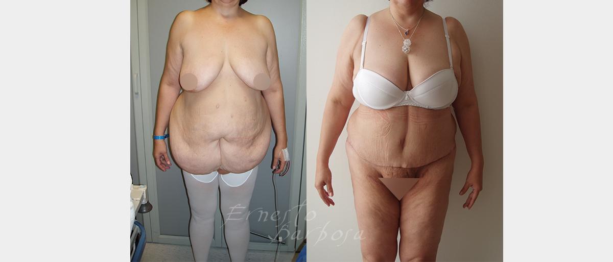 obesidadB01