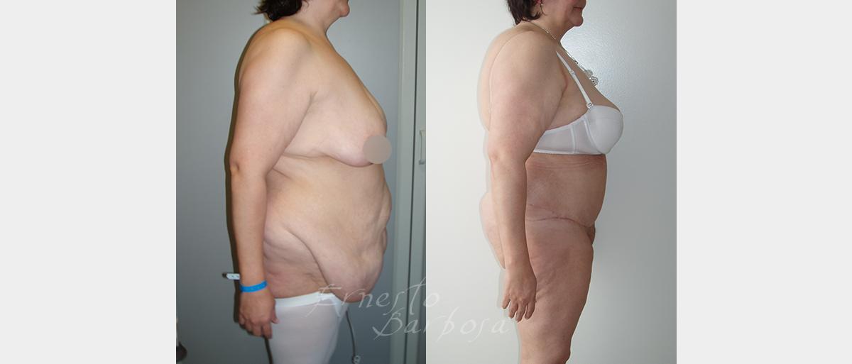 obesidadB02