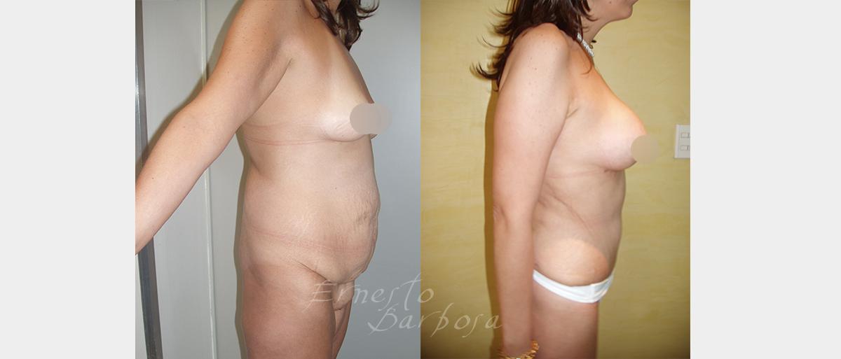 obesidadC01