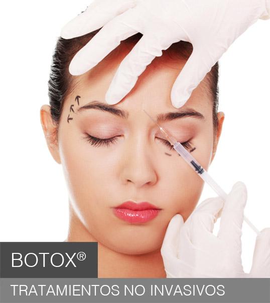 procedimientos-botox