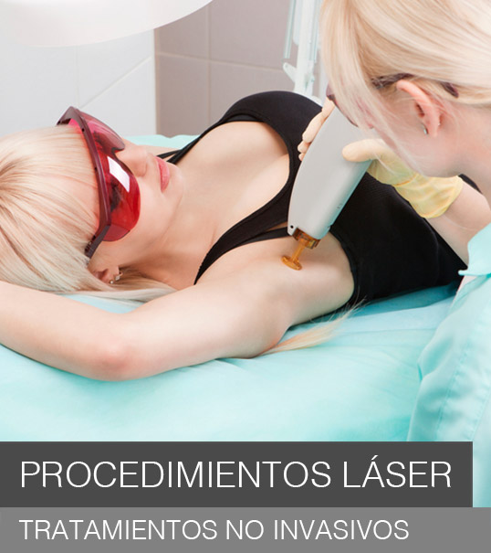 procedimientos-laser